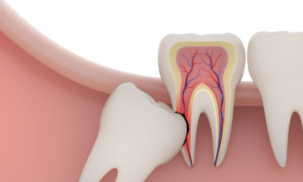 How To Control Wisdom Teeth Problem: Reducing The Wisdom Teeth Swelling