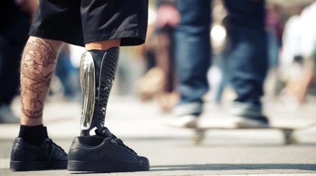 Prosthetic Tips: Walking On A New Prosthetic Device