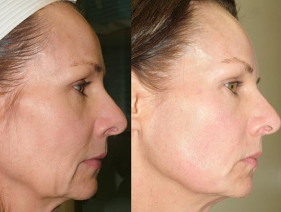 Facts About Non-Surgical Skin Tightening