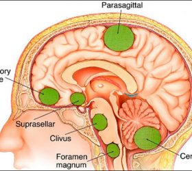 Meningioma and Some Of Its Related Information